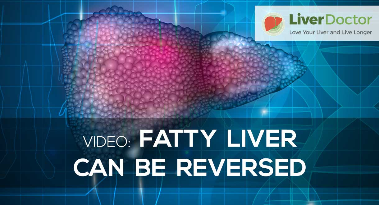 Fatty Liver Can Be Reversed
