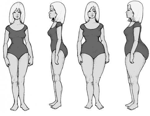 Body Types - Gynaeoid Type
