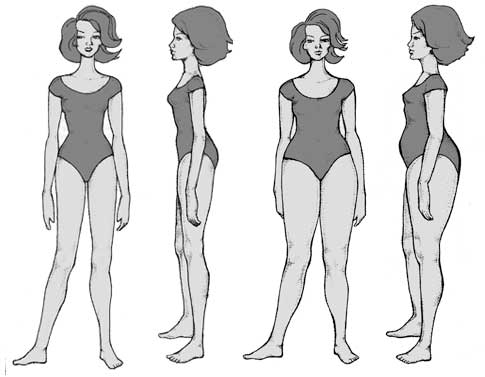 Types Of Artificial Hips
