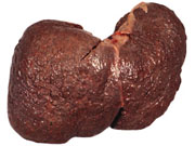 Liver-Doctor-Cirrhosis-Of-Liver