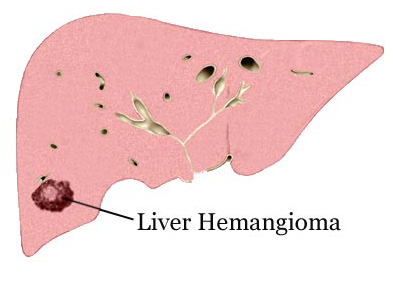 Benign Tumors of The Liver