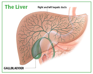 Gallbladder Example