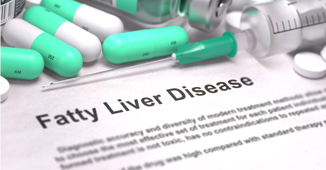 8 Things You Must Know If You Have A Fatty Liver