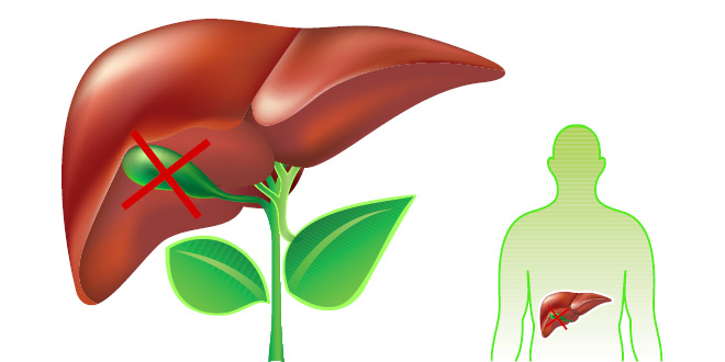 Things you must know if you don't have a gallbladder