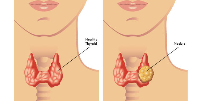 What To Do For Thyroid Nodules Liver Doctor