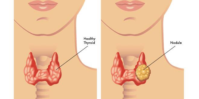 thyroid-nodule-w
