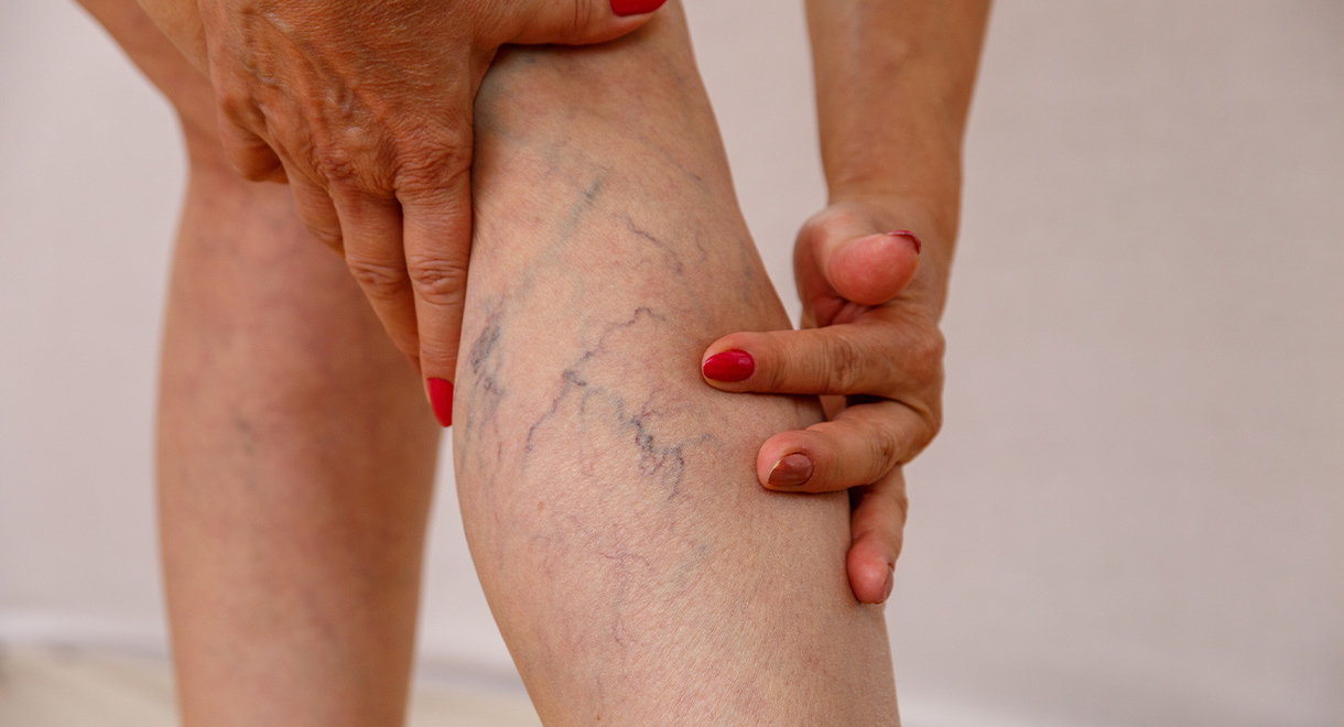 Case Study: Serrapeptase Helped My Pain and Varicose Veins