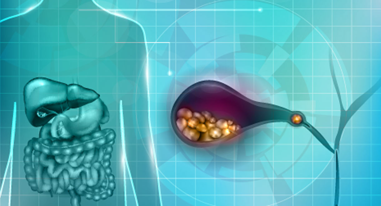 Could You Have Gallstones?