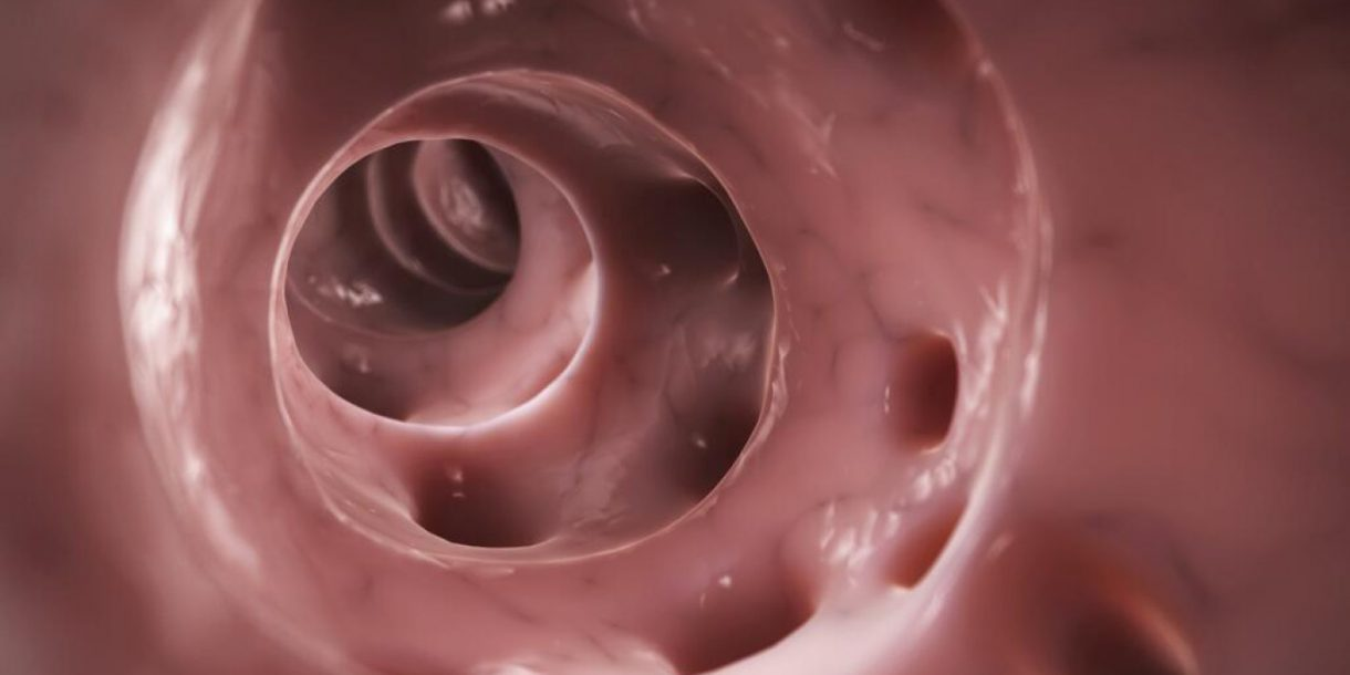 What really causes diverticulitis?