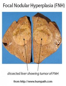 Liver-Doctor-Focal-Nodular-Hyperplasia-Tumor