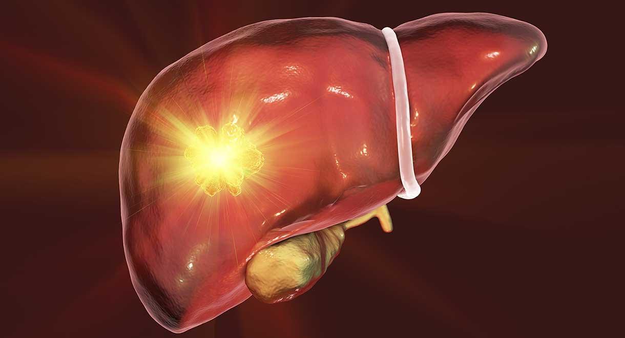 Adenomas Of The Liver