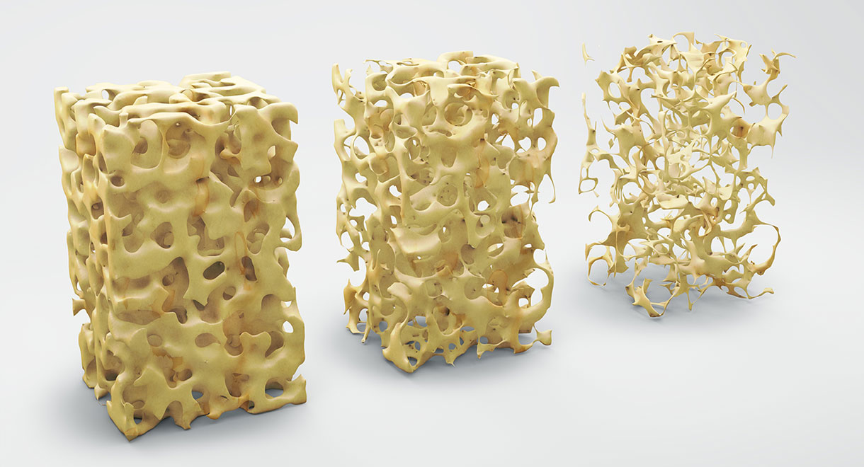 Osteoporosis: Best Remedies For Prevention And Management