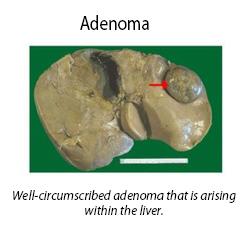 adenoma
