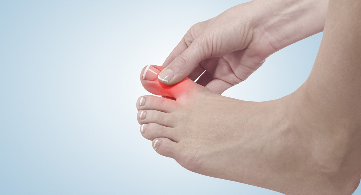 Worldwide Rates Of Gout Are Soaring
