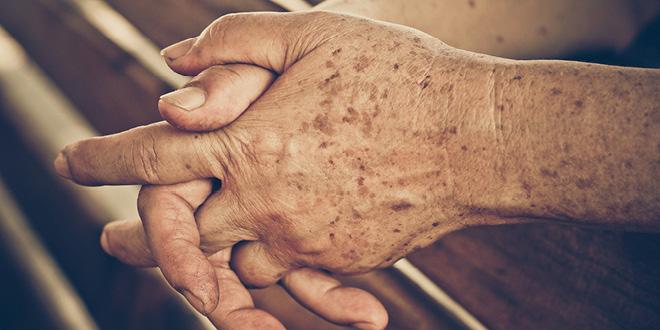 Liver-Doctor-Liver-Spots