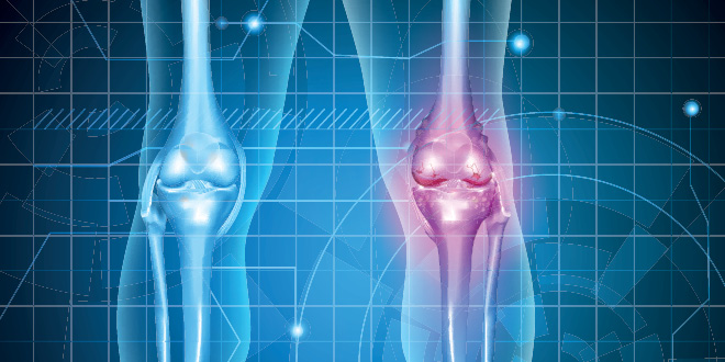 Knee Pain and Surgery