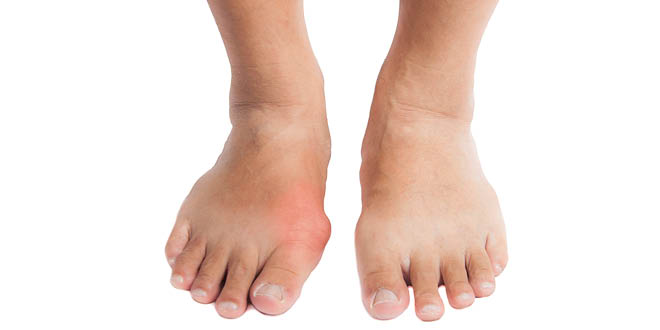 Best And Worst Foods For Gout