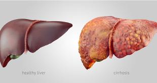 liver-good-bad-w