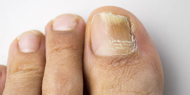 Fungal Toe Nails A Safe Cure