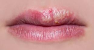 herpes-lips-w