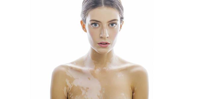 Vitamin D helps to treat vitiligo