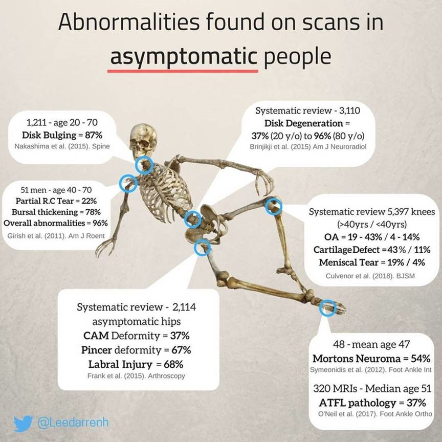 Did You Know Scans Don't Always Match Symptoms?