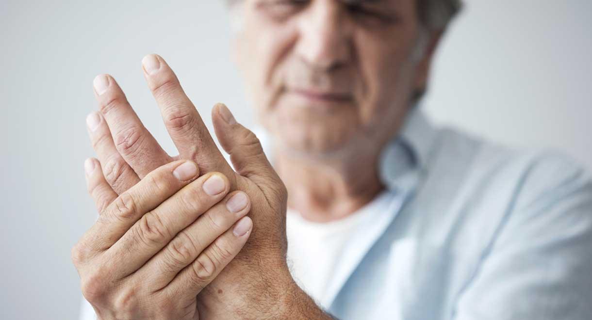 Case Study: Fatty Liver And Arthritis