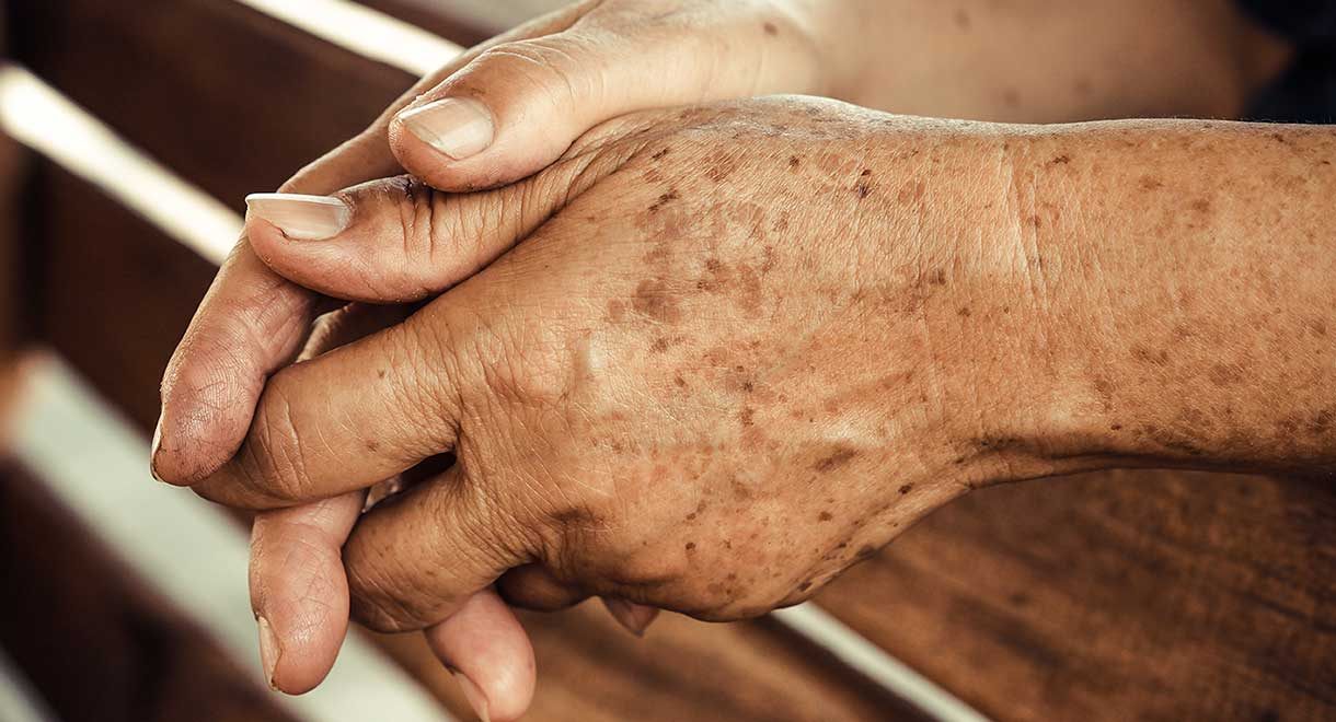 What To Do About Liver Spots (Age Spots)