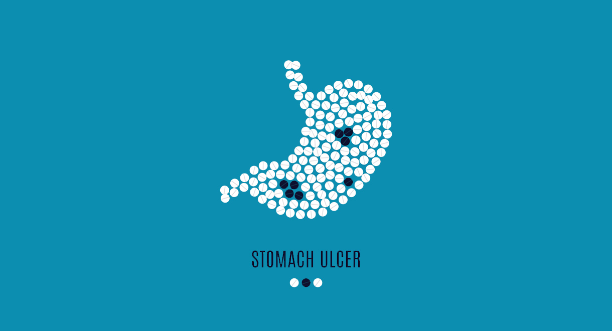 Natural Remedies For Stomach Ulcers