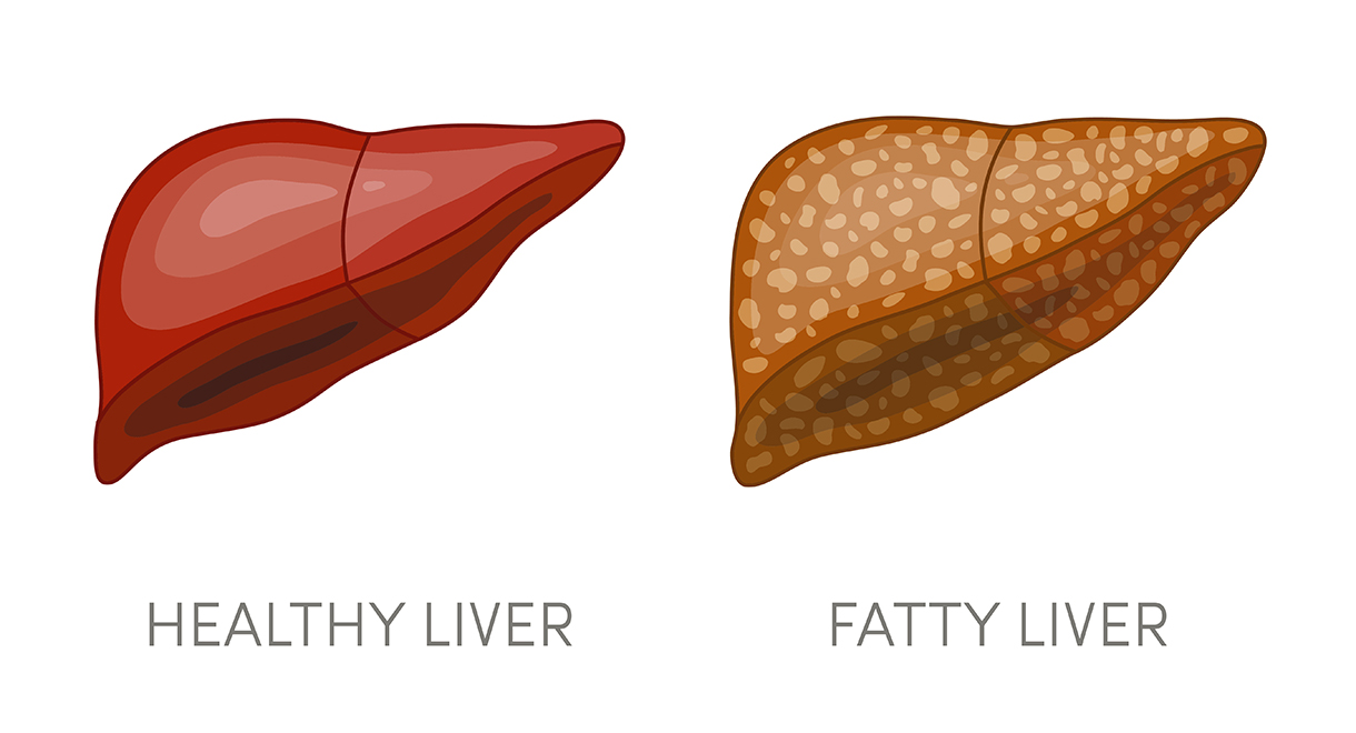 6 Common Causes Of A Fatty Liver